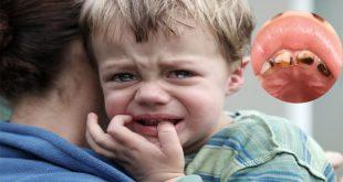 تخفيف الم تسوس الاسنان عند الاطفال